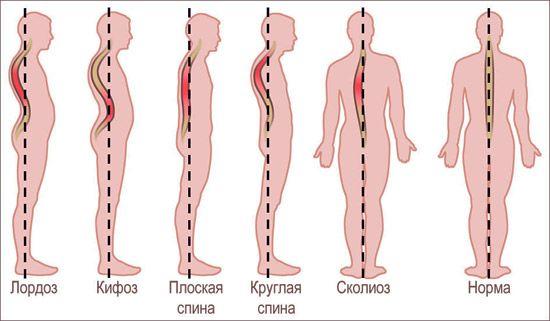 Что такое грудной кифоз возникает у ребенка в возрасте